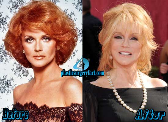 Lucille Ball Plastic Surgery Before And After 1