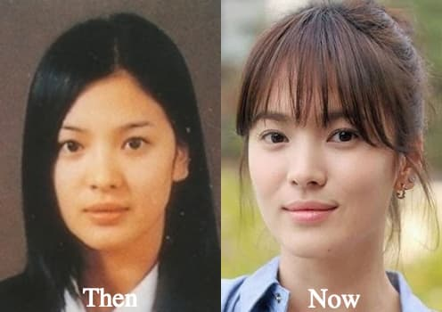 Park Shi Hoo Before And After Plastic Surgery 1