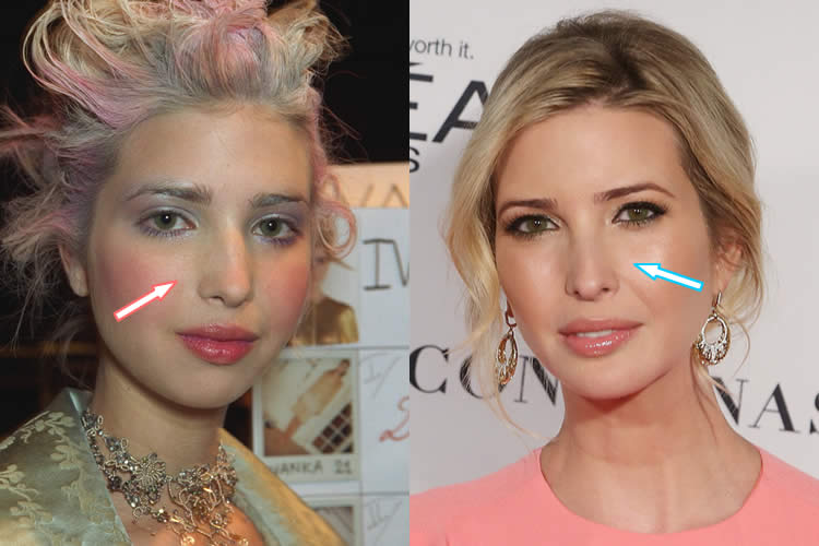 Pictures Of Ivanka Before Her Plastic Surgery 1