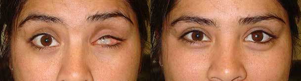 Plastic Surgery Almond Eyes Before After Best 1