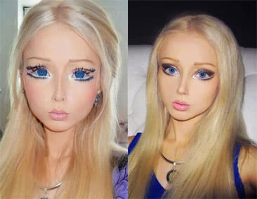 Plastic Surgery Before And After Face Glamour 1