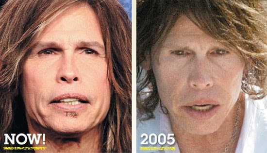 Steven Tyler Before And After Plastic Surgery 1