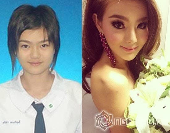 Thai Actress Before And After Plastic Surgery 1