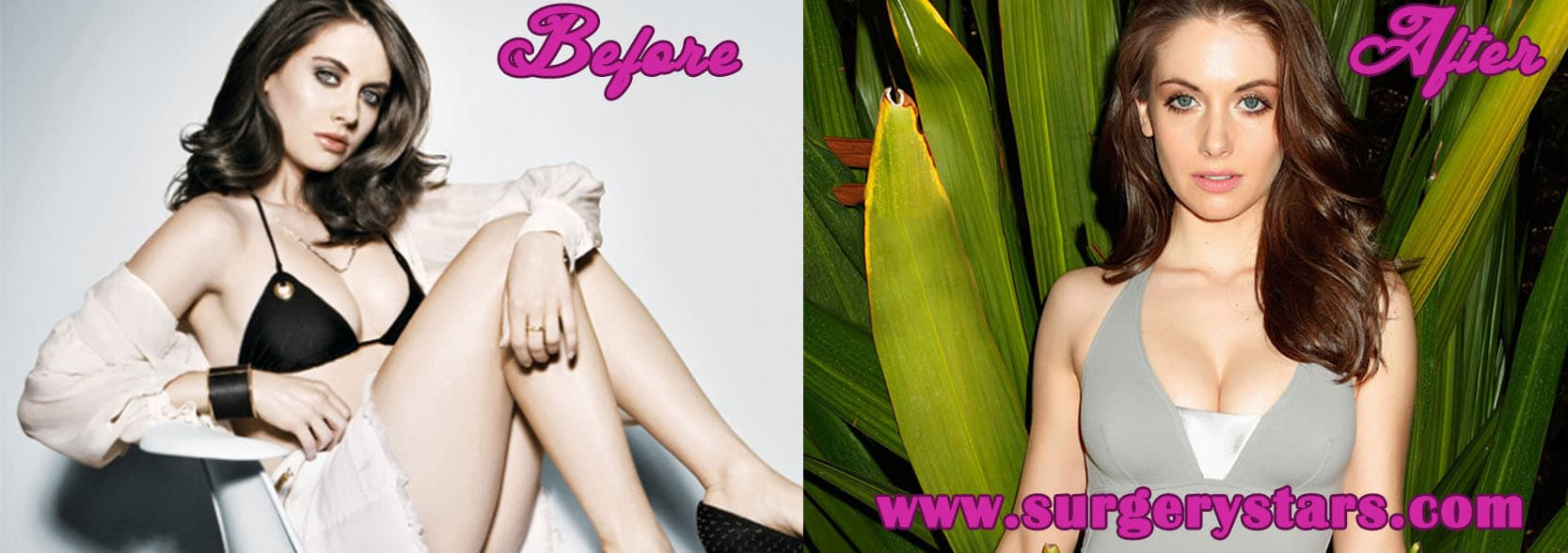 Alison Brie Before And After Plastic Surgery 1