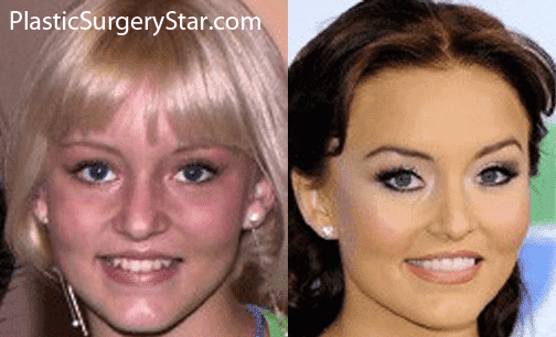 Barbara Mori Before And After Plastic Surgery 1