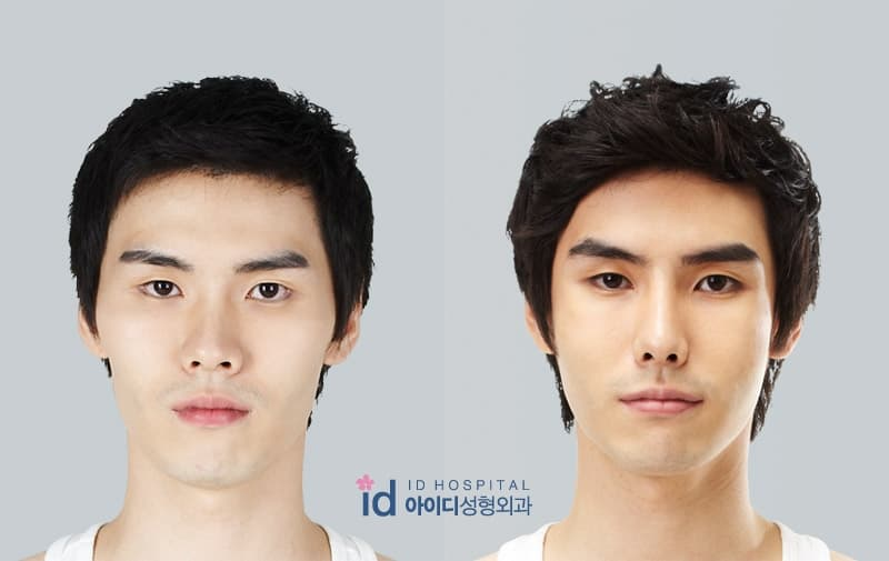 Breast Plastic Surgery Korea Before And After 1