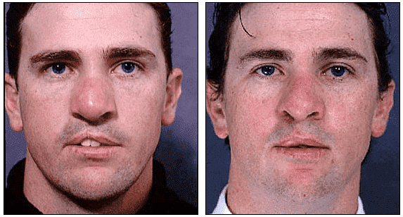 Cleft Lip Plastic Surgery Before After Adults 1