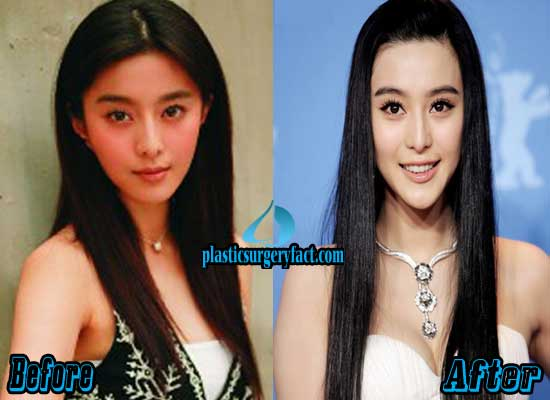 Fan Bingbing Before And After Plastic Surgery 1