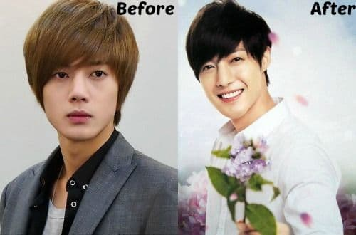 Kim Jaejoong Before And After Plastic Surgery 1