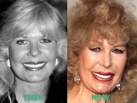 Loretta Swit Before And After Plastic Surgery 1