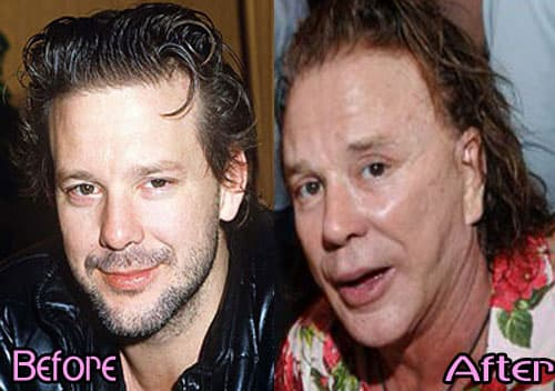 Micky Rourke Before And After Plastic Surgery 1