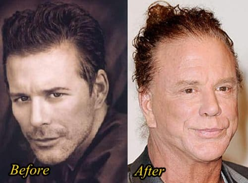 Mikey Rourke Before And After Plastic Surgery 1