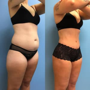Plastic Surgery Lipo Before And After 1