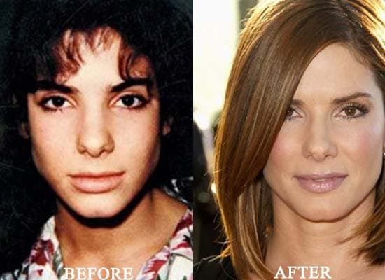 Stevie Nicks Before And After Plastic Surgery 1
