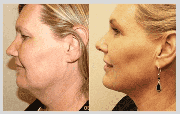 cost of plastic surgery to remove double chin 1