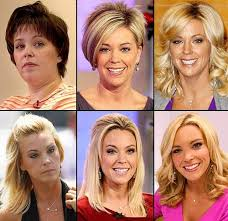 Kate Plus 8 Plastic Surgery Before And After 1