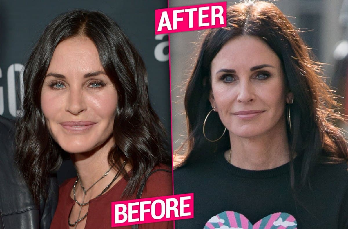 Courtney Cox Before And After Plastic Surgery 2015 photo - 1