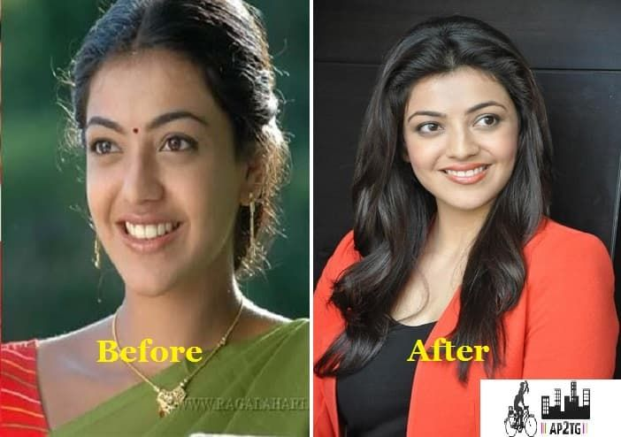 Tollywood Actress Plastic Surgery Before And After photo - 1