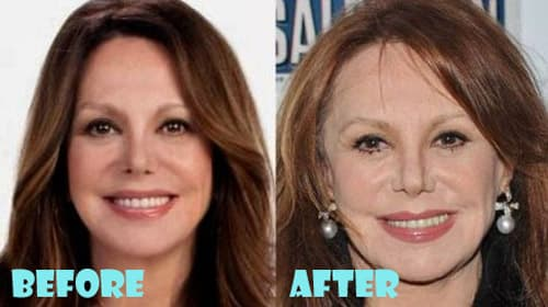 Carrie Fisher Before And After Plastic Surgery 1