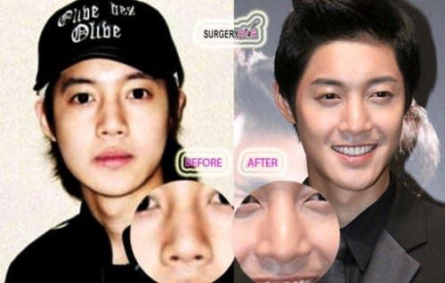 Korean Actors Before And After Plastic Surgery 1
