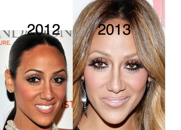 Melissa Gorga Before And After Plastic Surgery 1