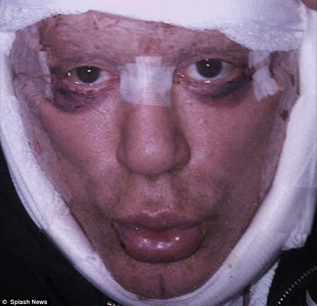 Mickey Rourke Before And After Plastic Surgery 1