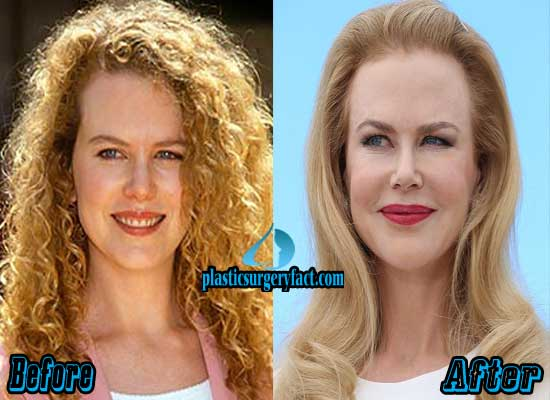 Nicole Kidman Before And After Plastic Surgery 1