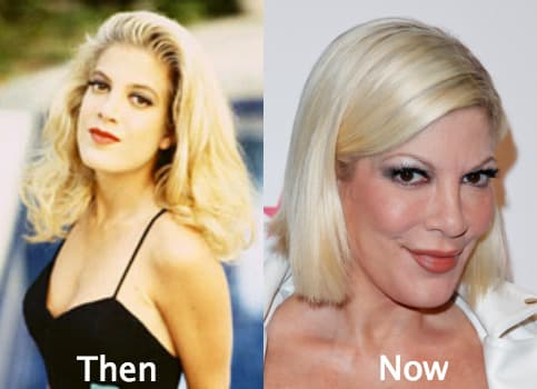 Tori Spelling Before And After Plastic Surgery 1