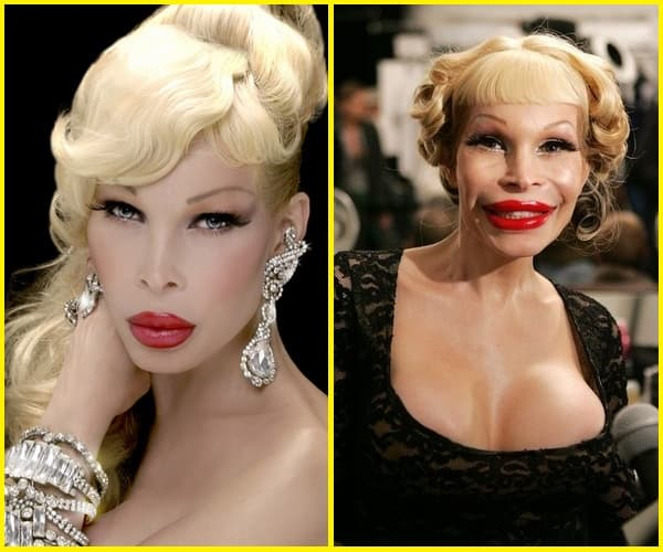 Amanda Lepore Before And After Plastic Surgery 1