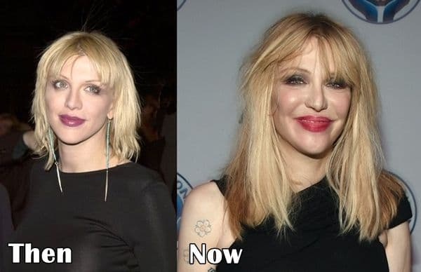 Courtney Love Before And After Plastic Surgery 1