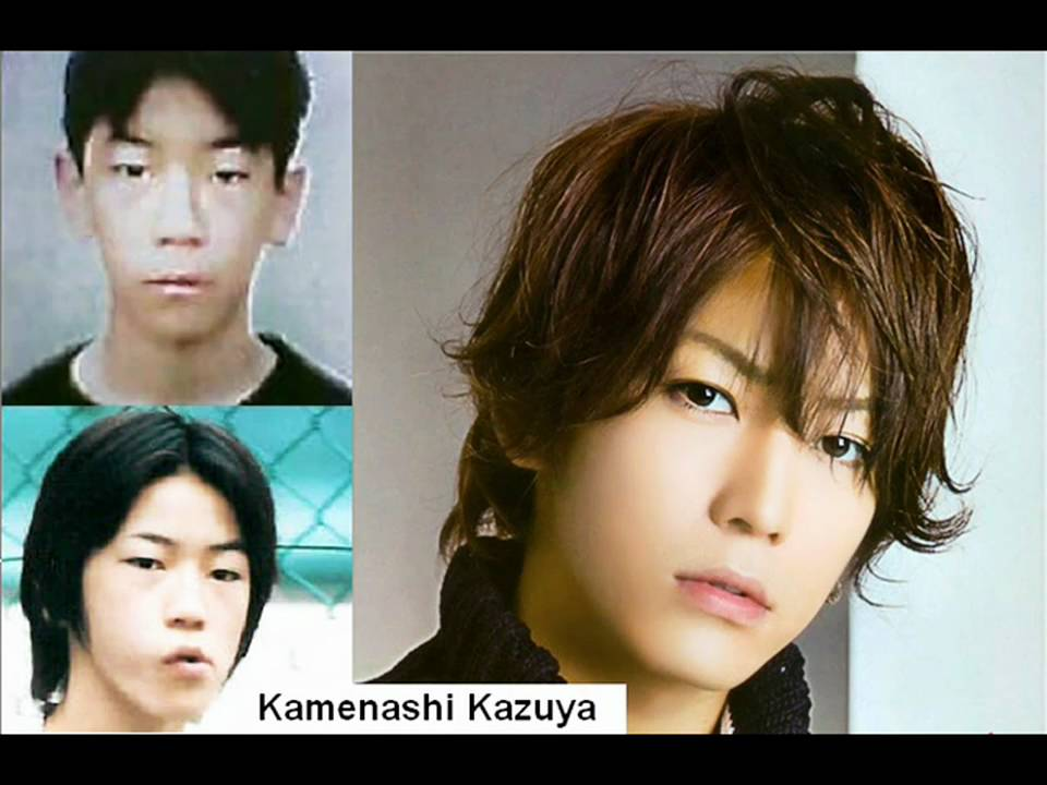 Korean Singer Plastic Surgery Before And After 1