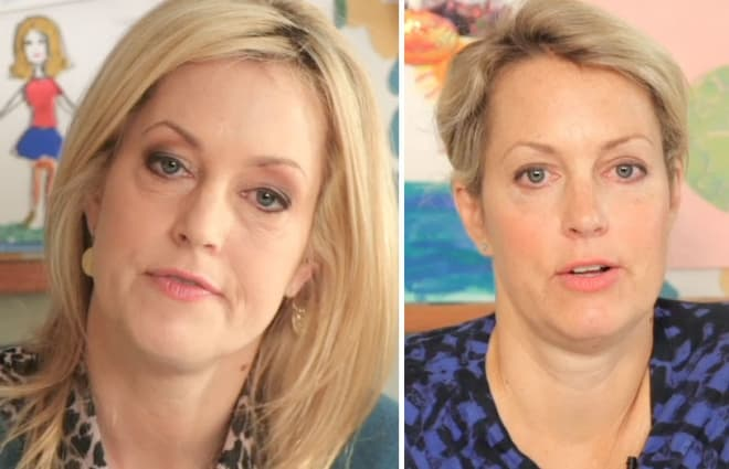 Ali Wentworth Before And After Plastic Surgery 1