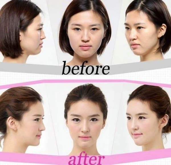 Can You Get Plastic Surgery In Korea Before 18 1