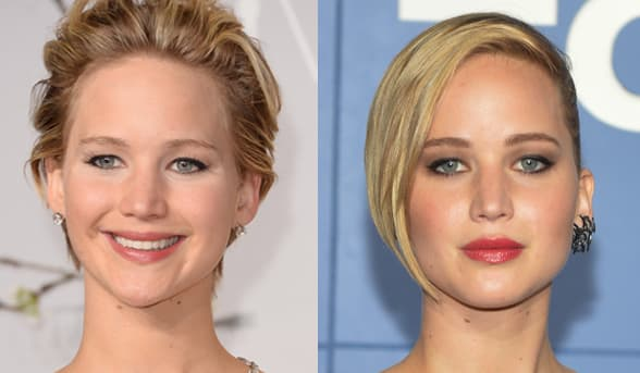 Jennifer Lawrence Before After Plastic Surgery 1