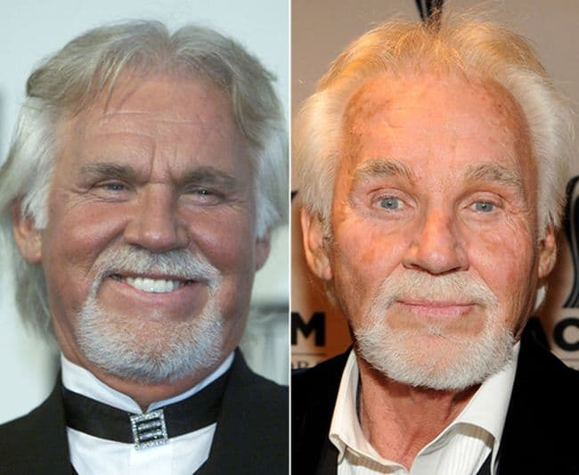 Kenny Rodgers Before And After Plastic Surgery 1