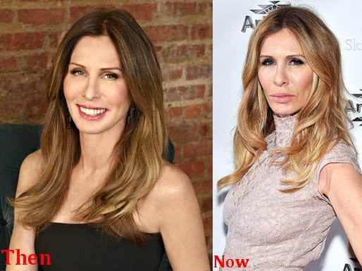 Lisa Hochstein Before Plastic Surgery Pictures 1