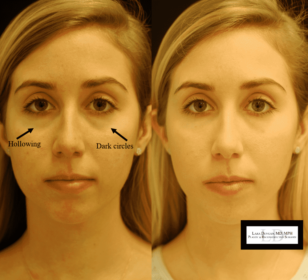 Plastic Surgery Dark Circles Before And After 1