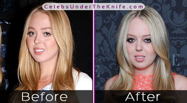 Tiffany Trump Before And After Plastic Surgery 1