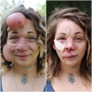Twice Plastic Surgery Before And After 1