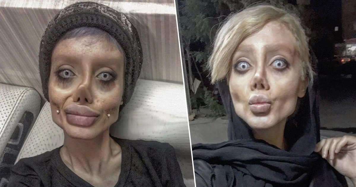 Angelina Jolie Before Plastic Surgery Pictures 1