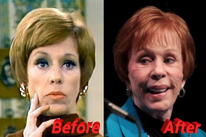 Carol Burnett Plastic Surgery Before And After 1