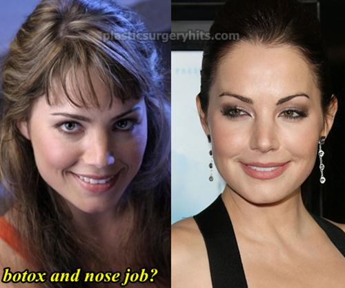 Erica Durance Before And After Plastic Surgery 1