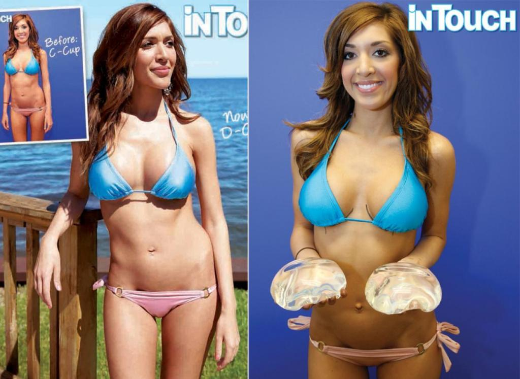 Farah Abraham Before And After Plastic Surgery 1
