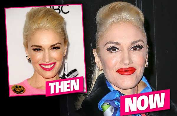 Gwen Stefani Plastic Surgery Before After Chin 1