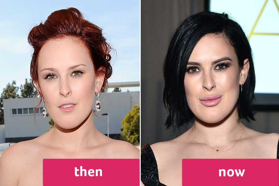 Haley Giraldo Before And After Plastic Surgery 1