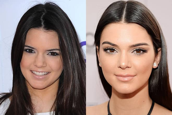 Kim Kardashia Plastic Surgery Before And After 1