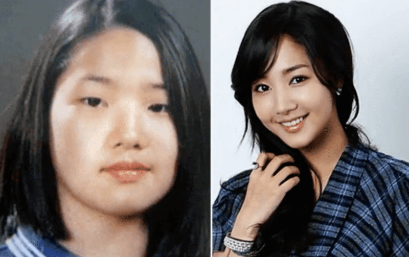 Korean Stars Plastic Surgery Before And After 1