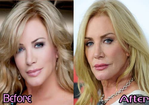Old Hollywood Plastic Surgery Before And After 1