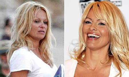 Pam Anderson Before Plastic Surgery Uncensored 1