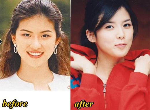 Park Bo Young Plastic Surgery Before And After 1